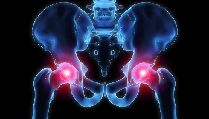 Simple Ways to Fight Arthritis Pain