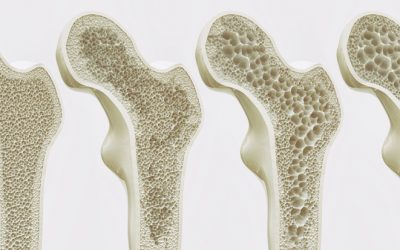 Going Beyond Calcium for Osteoporosis